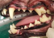歯石除去4